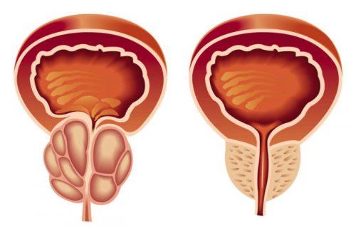 Увеличение размера предстательной железы