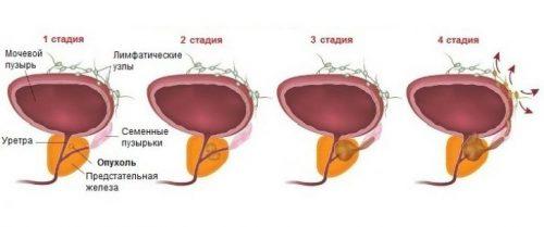 Стадии аденомы предстательной железы