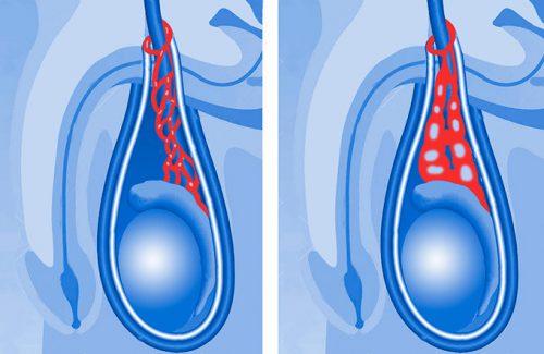Изменения в мошонке при варикоцеле