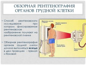 Рентгенологическое исследование органов грудной клетки