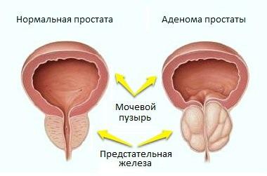 Улучшение работы предстательной железы