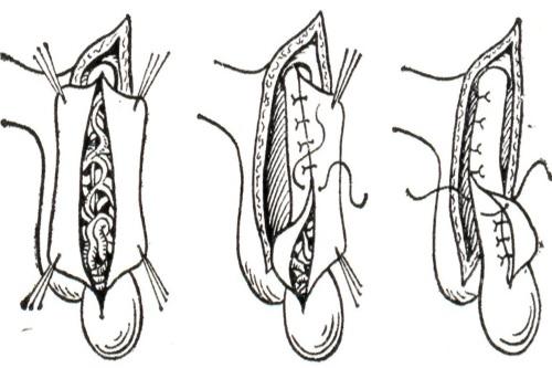 Этапы проведения операции Мармара
