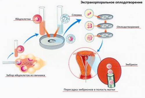 Схема экстракорпорального оплодотворения
