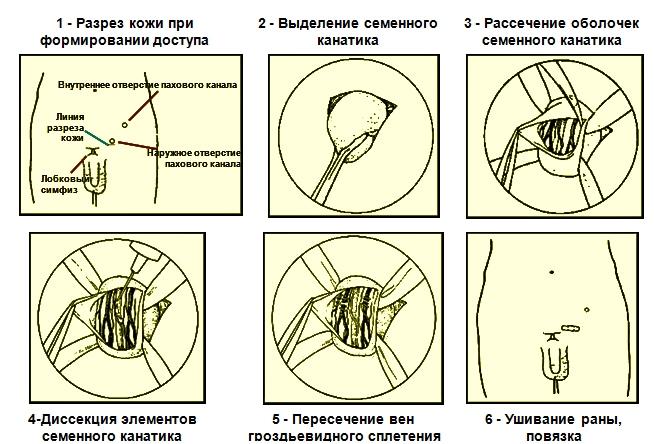Схема операции Мармара при варикоцеле
