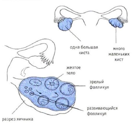 Строение яичника и кисты
