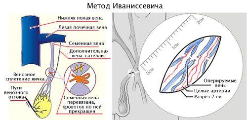 Метод Иваниссевича при варикоцеле