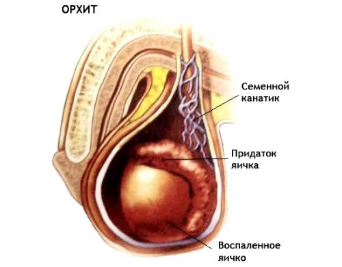 Орхит или воспаление тестикул