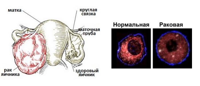Рак кисты яичника