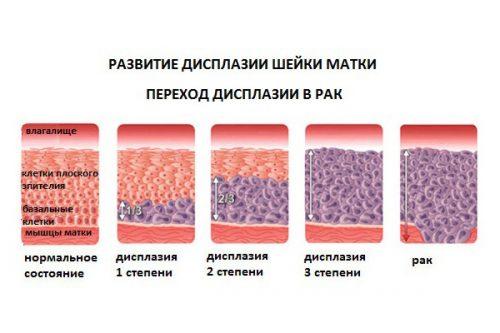 Развитие дисплазии шейки матки