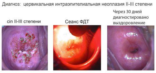 Результаты ФДТ при дисплазии шейки матки