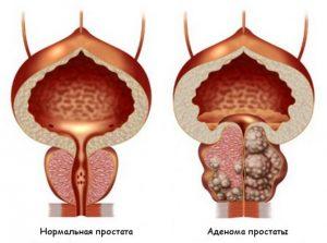 Проявление аденомы предстательной железы