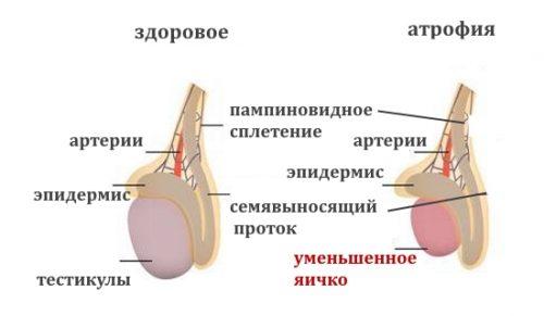 Тестикулярная атрофия у мужчин