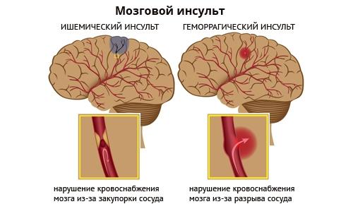 Типы инсульта