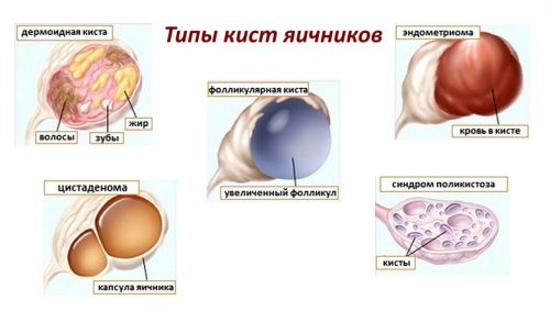 Типы кист яичников