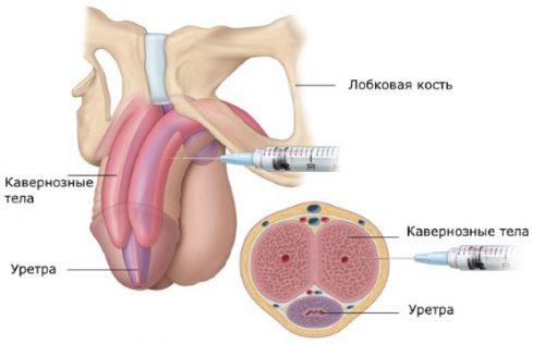 Восстановление кровоснабжения инъекциями