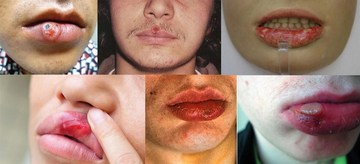 Фото сифилиса губ