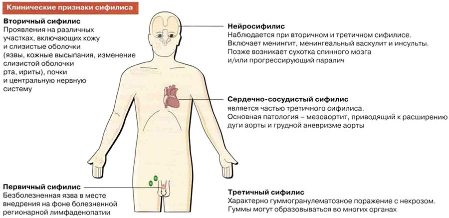Клинические признаки сифилиса