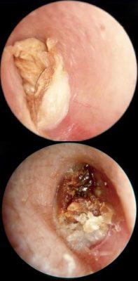 Обструкция наружного слухового прохода