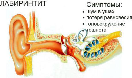 Основные симптомы лабиринтита