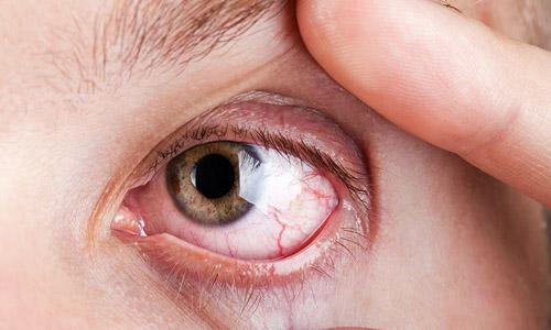 Поражение глаз сифилисом