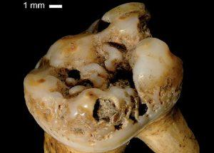 Поражение кости сифилисом