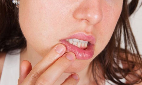 Проблема сифилиса губ
