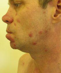 Распространение сифилиса
