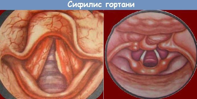 Внешний вид сифилиса гортани