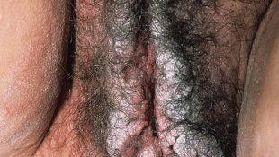 остроконечные кондиломы вульвы