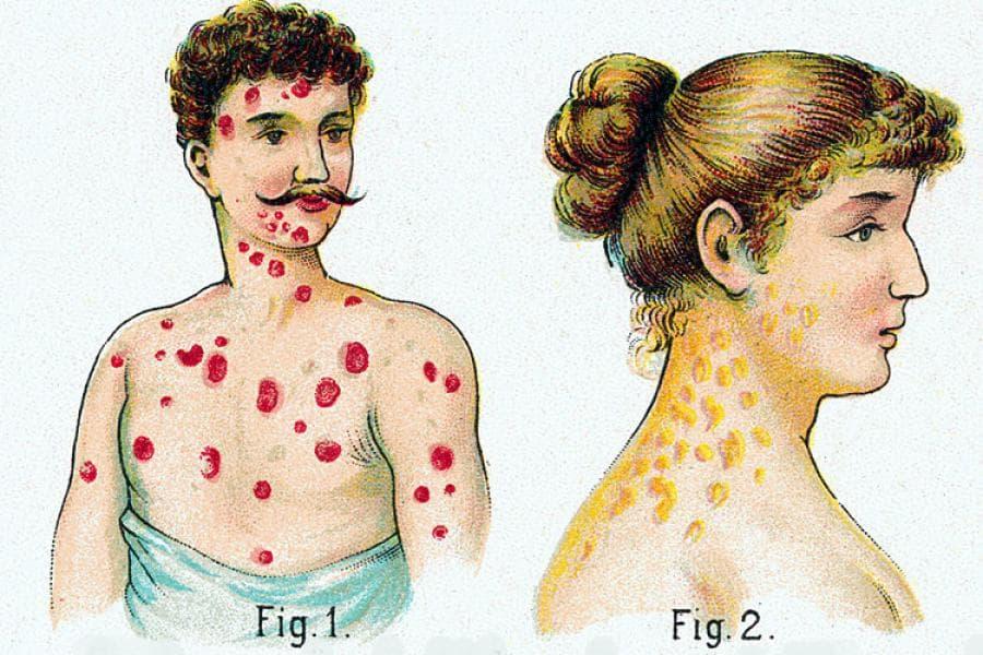 сыпь при ИППП: сифилис