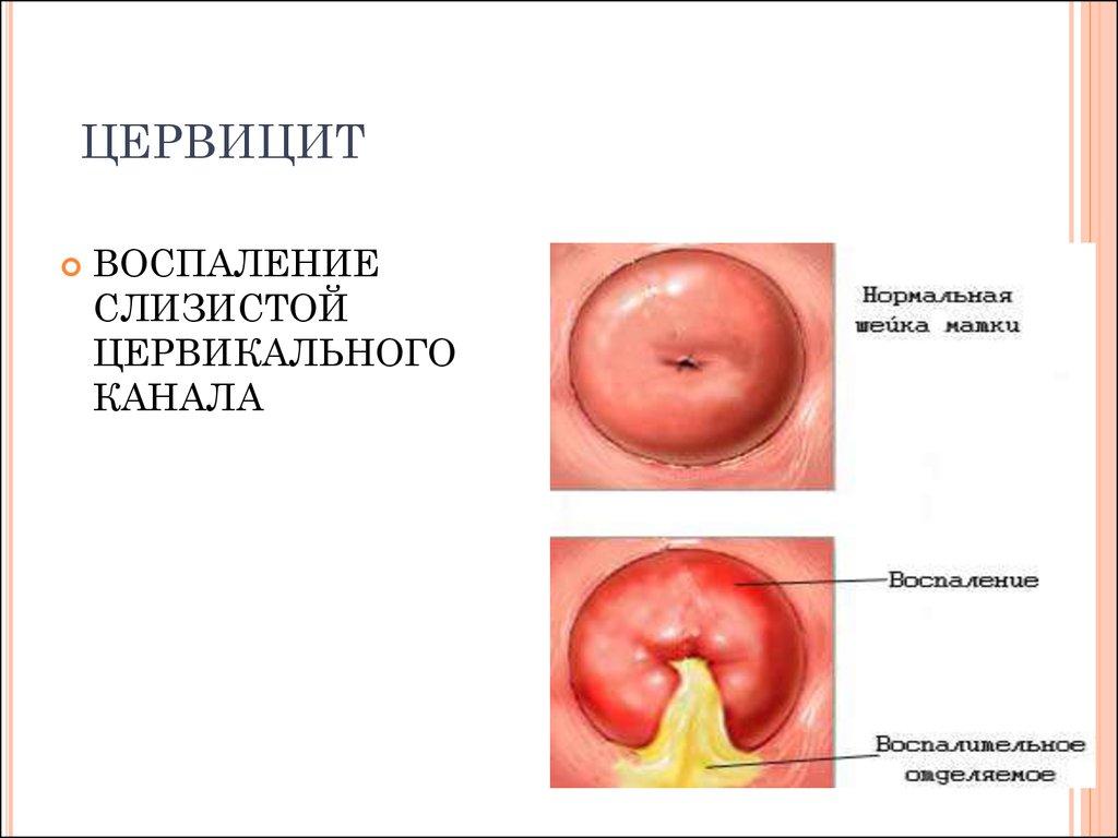 заболевания матки при гарднереллезе