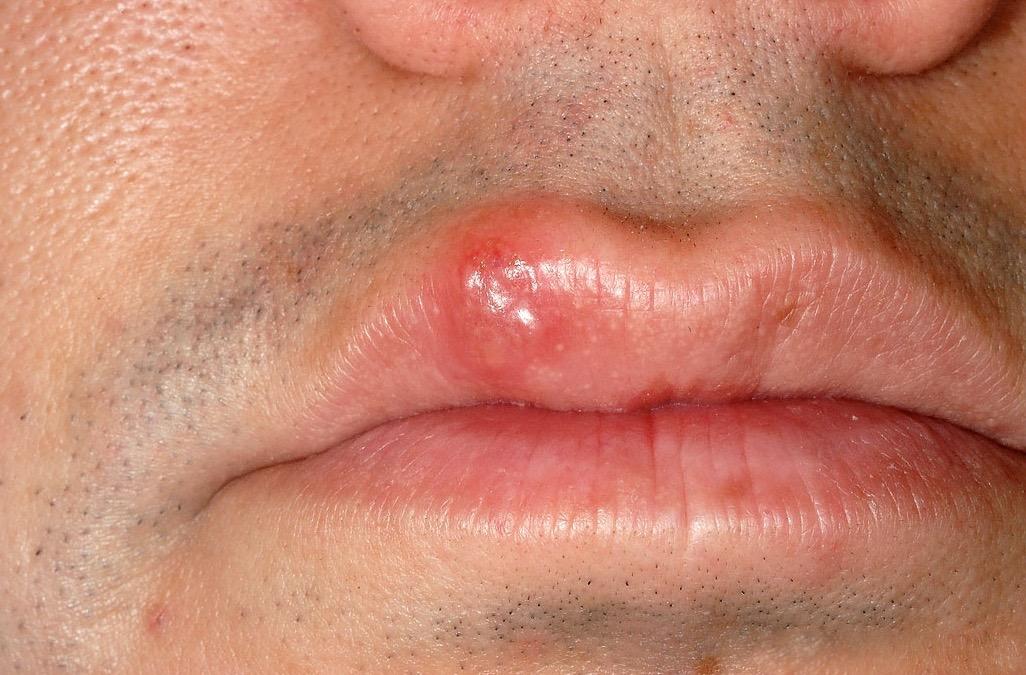 симптомы венерологических инфекций