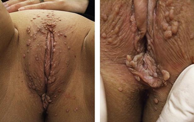 сыпь при ИППП: вирус папилломы человека