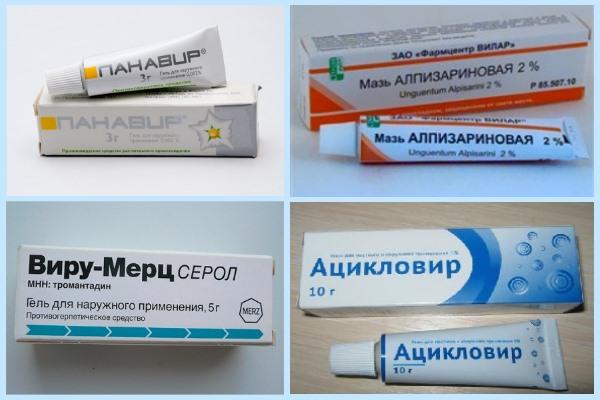 Герпес во влагалище: симптомы и лечение заболевания