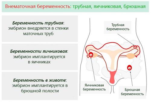 posle-masturbatsii-bolit-yaichnik