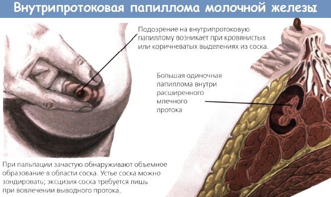 Народные средства лечения внутрипротоковых папиллом молочной железы отзывы - Внутрипротоковая папиллома молочных желез симптомы