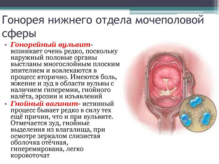 Триппер (гонорея) - первые признаки заражения