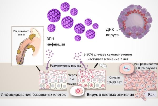 Вирус папилломы человека 33 типа у мужчин лечение