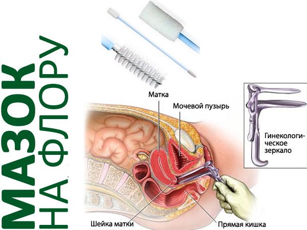 Как берут мазок пцр у беременных 18