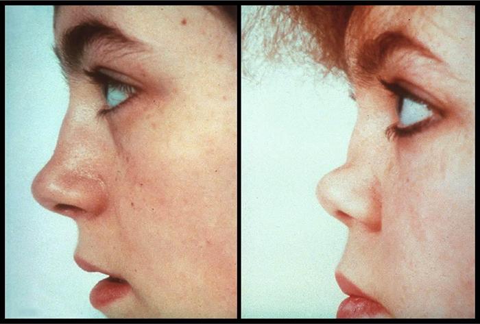 Сперма потела из носа