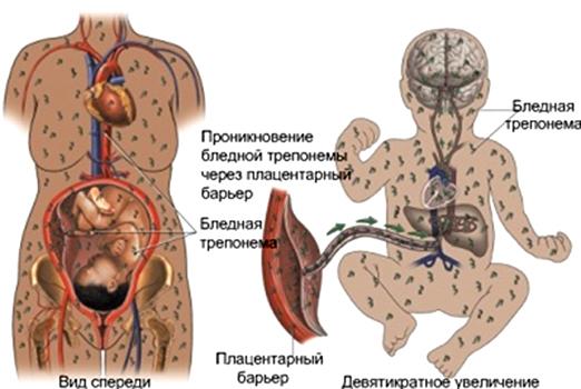 Сифилис при беременности: влияние на плод, лечение, диагностика