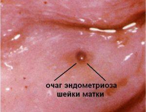 Эндометриоз шейки матки: причины, симптомы, лечение