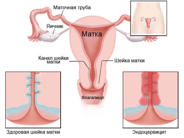 Эндоцервицит при беременности: симптомы, лечение